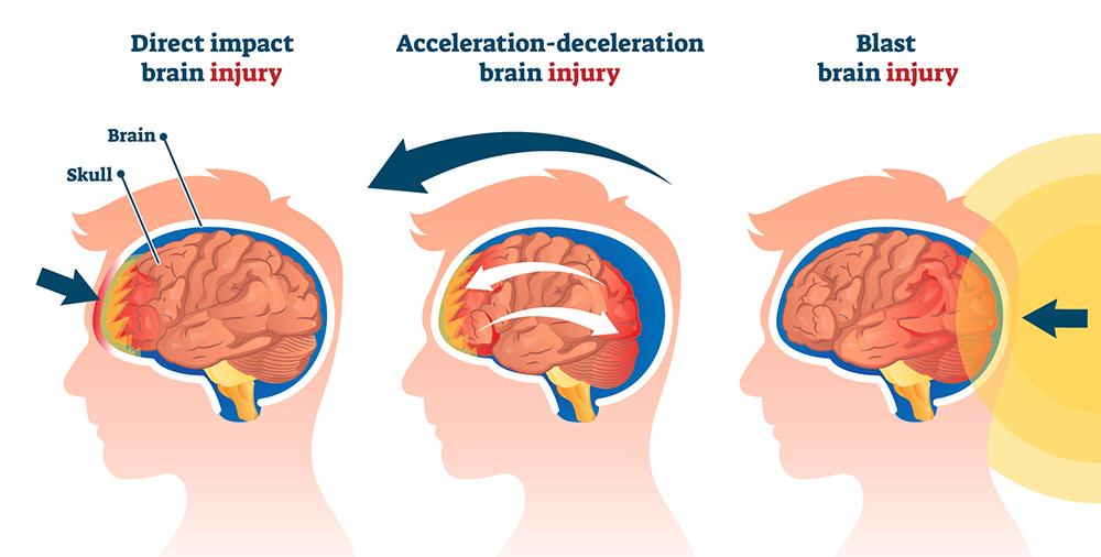 helmet concussion graphic
